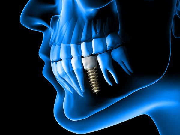 כמה עולה שתל בשיניים