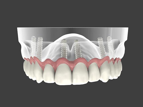 השתלות שיניים, השתלת שיניים ביום אחד, רגע לפני השתלת שיניים